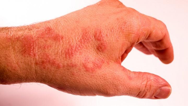 Chronische Hautkrankheiten: Das ist im Urlaub zu beachten